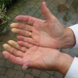 레이노 증후군이란, 추운 날씨 손발 차고 저리면 의심