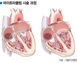 개흉수술 없이 클립으로 심장 승모판막 시술 [주목해야 할 신 의료 기술]
