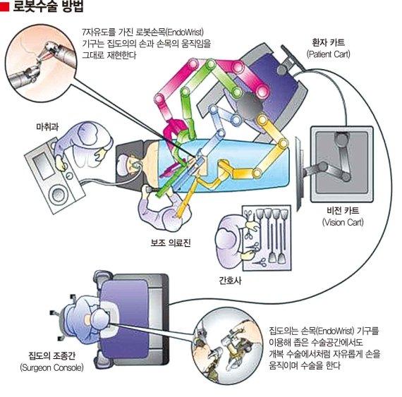 [yes plus 정명진 의학전문기자의 청진기] 로봇수술, 540도 회전에 손목처럼 마음대로 구부러져