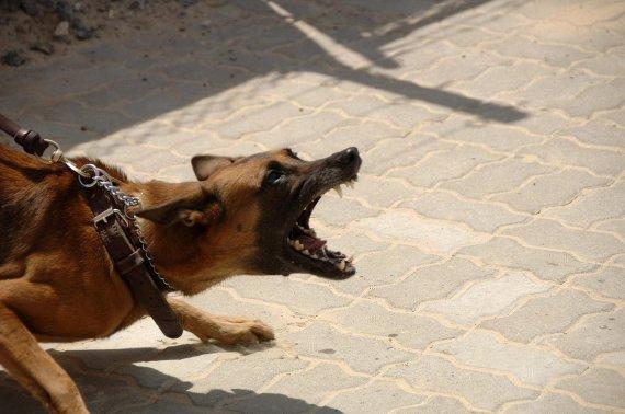 英 40대 여성, 키우던 개에 물려 숨져.. '충격'