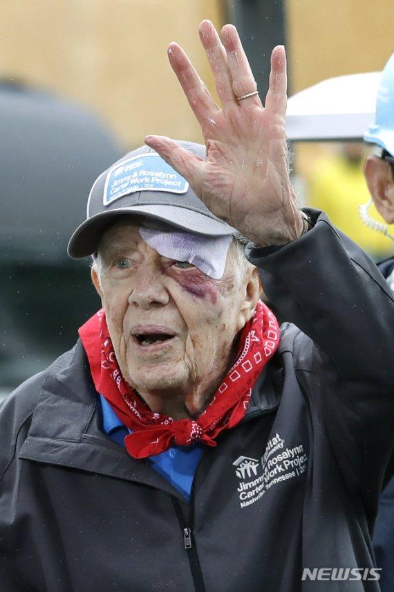 95세 지미 카터, 이마 14바늘 꿰매고도 봉사활동 참가