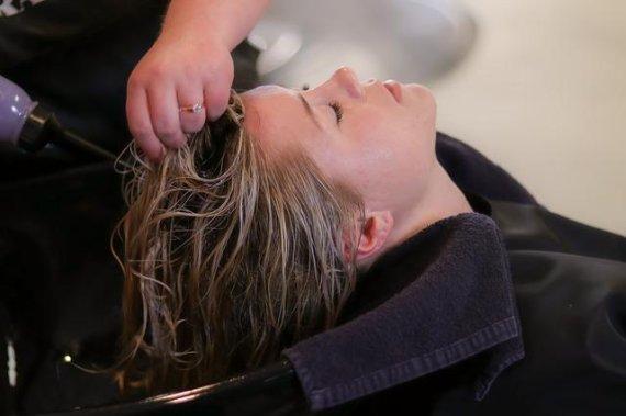 탈모환자 43%는 여성.. 머리 자주 감아도 될까 <건강>