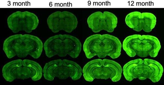 치매 정복에 한걸음… 치매모델 실험쥐 개발