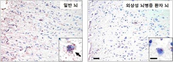 손상된 생쥐 뇌가 2주만에 회복됐다