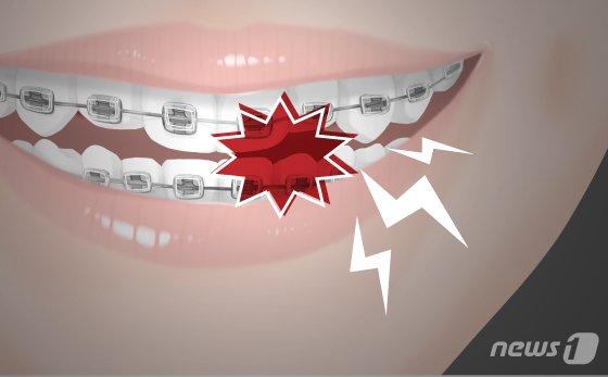 '허위 진단서'로 환자 보험금 타게한 치과의사