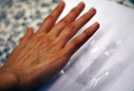 손, 발에 땀이 너무 많아 고민이라면?