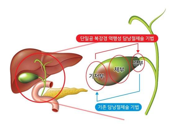 온종합병원, 단일공 복강경 담낭절제술 600례 돌파
